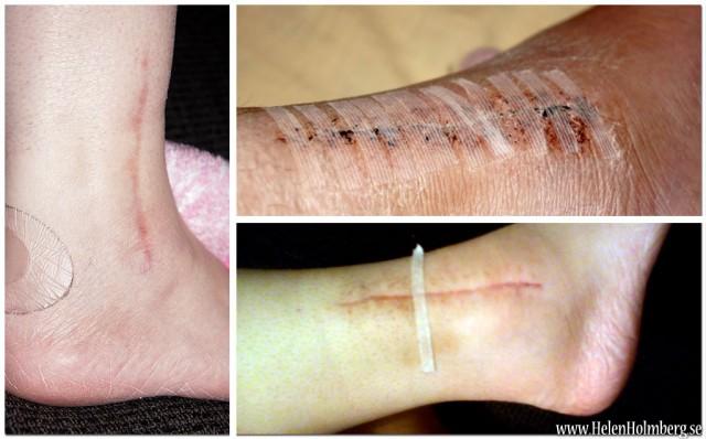 Operationsärret några dagar efter gipset togs av på min födelsedag, ett foto från slutet av juli och ett nytaget foto