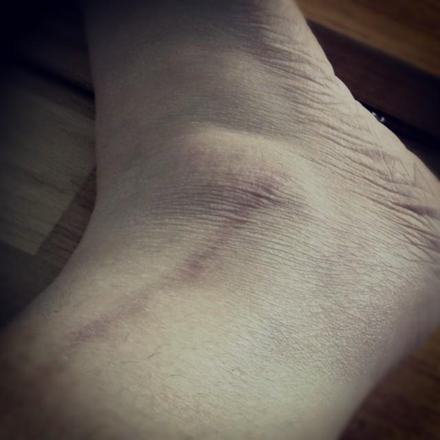 Inspekterade mitt är på högra fotleden, 16 månader sen operationen